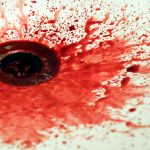 Analverkehr macht ihr Schmerzen und es blutet immer
