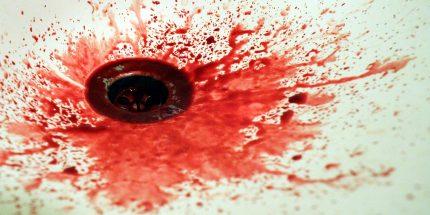 Analsex tut ihr weh, es blutet: Soll ich ein anderes Gleitmittel nehmen?