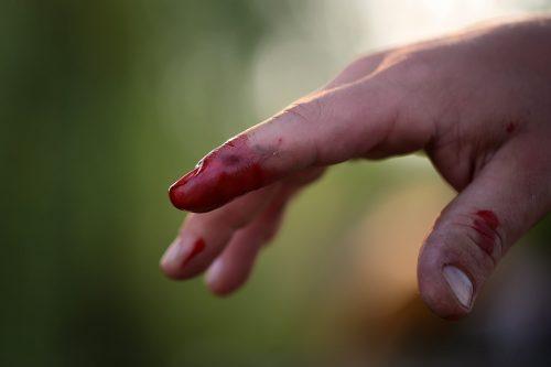 Blutige Hand, Finger: Gefahr einer HIV-Übertragung / Aids-Ansteckung?