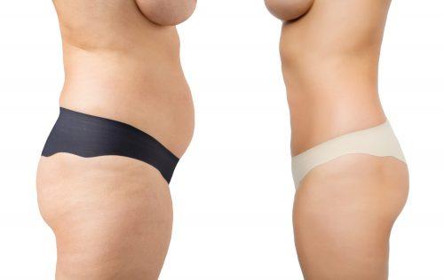 Durch sexuelle Aktion abnehmen und dünner / schlanker werden, geht das?