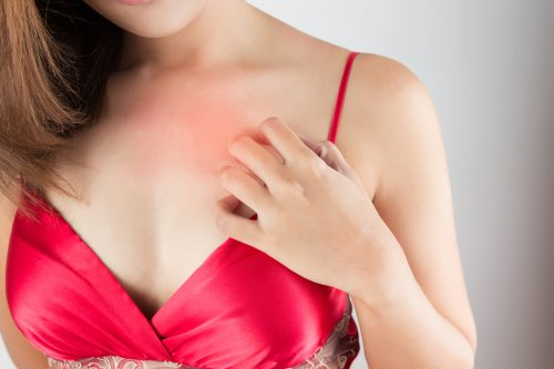 Bei jedem Sex kriegt meine Freundin Ausschlag am Dekolleté / an der Brust